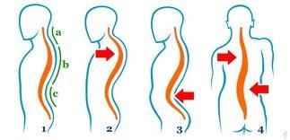 tincturi pentru boli ale coloanei vertebrale și articulațiilor